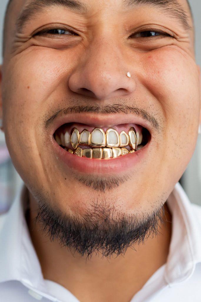 groom with gold teeth